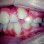 Tratamento odontológico antes