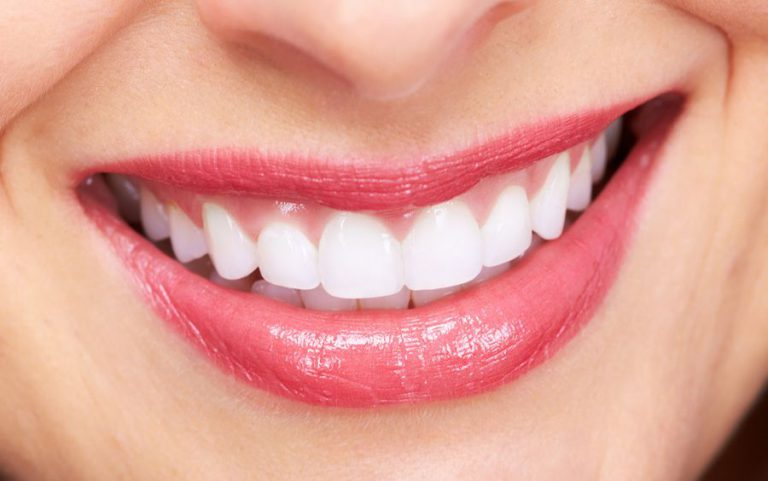 Clareamento Dental Caseiro Funciona Sorridents Clinicas