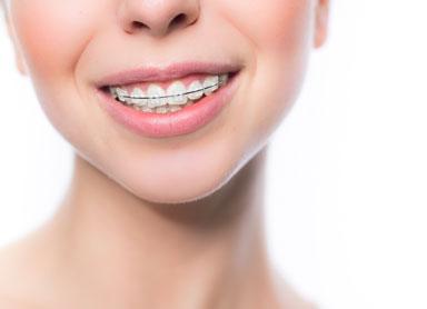 imagem aparelho ortodontico fixo