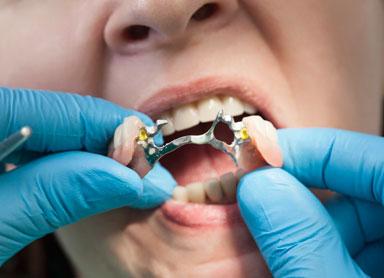 implante de protese dentaria