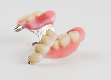 protese dentaria desmontada
