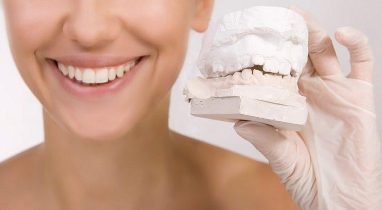 lente de contato dental saiba o que é e como funciona