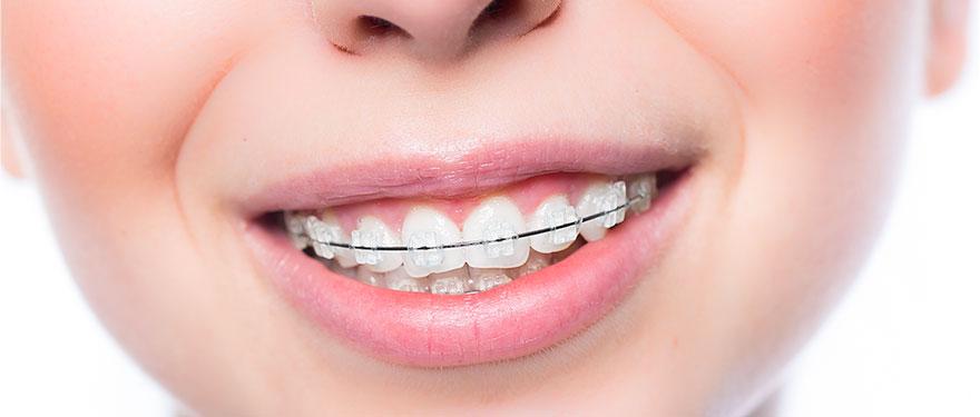 Aparelho Ortodontico Sorridents Clinicas Odontologicas