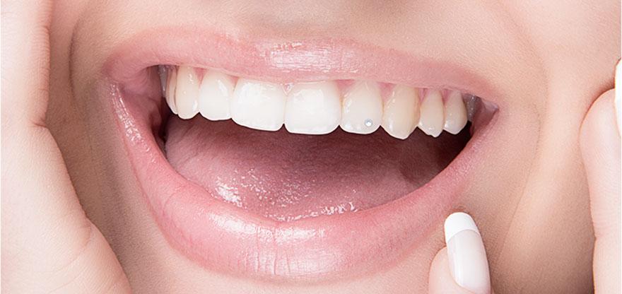 Piercing dental   Sorridents - Clínicas Odontológicas d56f7775d3