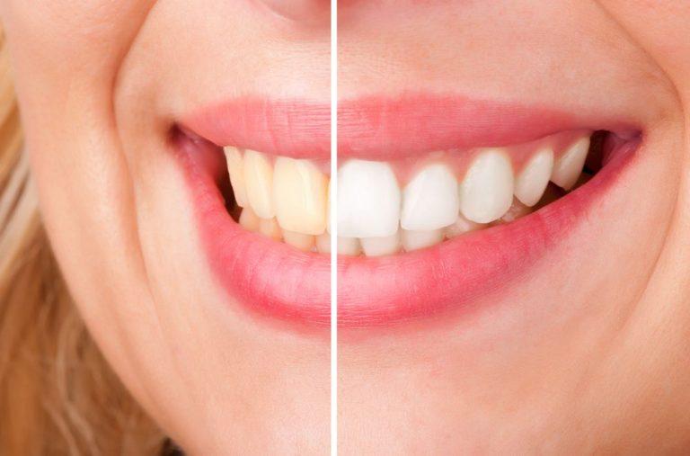 Clareamento Dental Antes Ou Depois De Tirar O Aparelho Ortodontico